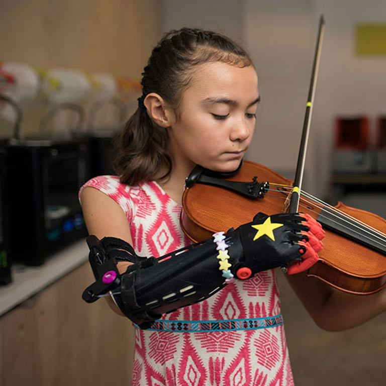 A young girl with a mechanical arms plays the violin.
